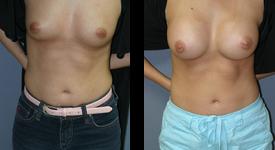 breast_p10