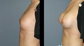 breast_p10a
