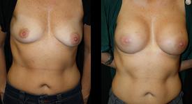 breast_p11