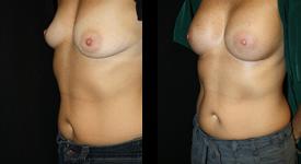 breast_p11a