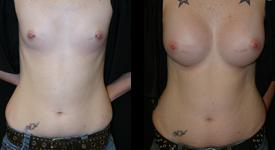 breast_p12