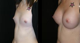 breast_p12a