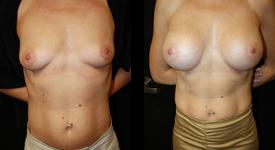 breast_p13