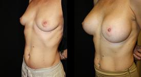 breast_p13a