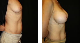 breast_p13b
