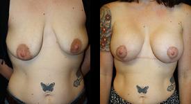 breast_p14