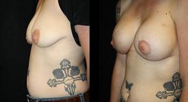 breast_p14a