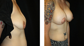 breast_p14b