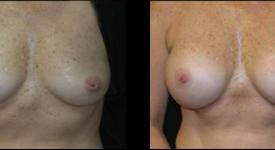 breast_p15