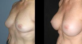 breast_p15a
