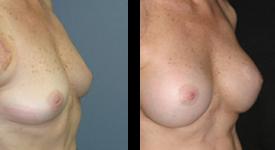 breast_p15b