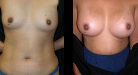 breast_p16