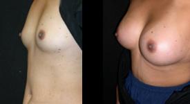 breast_p16a