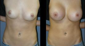 breast_p17