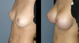 breast_p17a