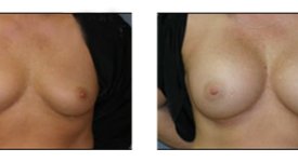 breast_p19