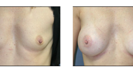 breast_p20