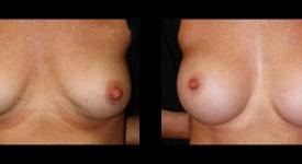 breast_p21