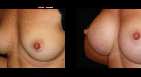 breast_p21a