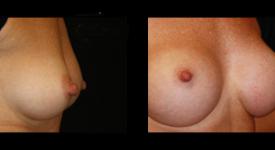breast_p21b