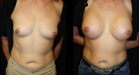 breast_p22