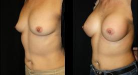 breast_p22a