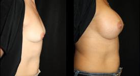 breast_p22b
