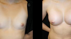 breast_p5