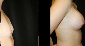 breast_p5a