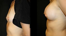 breast_p5b