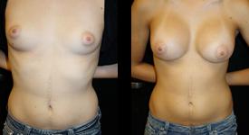 breast_p6