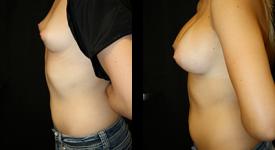breast_p6a