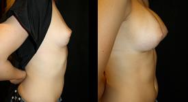breast_p6b
