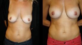 breast_p7