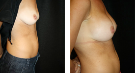 breast_p7b