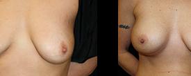 breast_p8