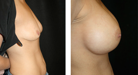 breast_p8b