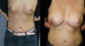 breast_p9