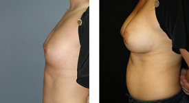 breast_p9a