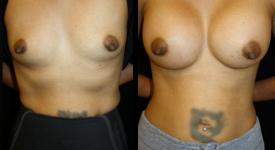 breast_pt-22-1
