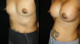 breast_pt-22-2
