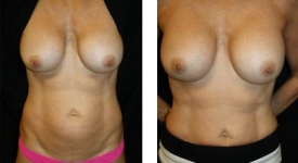breast_pt-24_1a