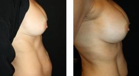breast_pt-24_1b