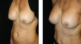 breast_pt-24_1c