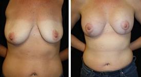 breast_pt-23