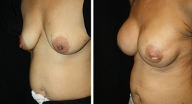 breast-reconstruction_p1