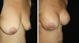 breast-reconstruction_p2