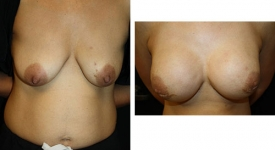 breast-reconstruction_p3