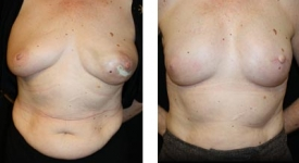 breastrecon-pt6-1a