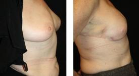 breastrecon-pt6-1b